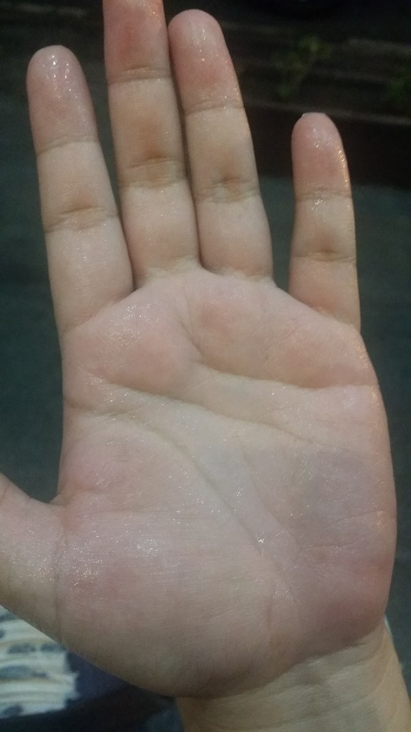 No Sweat: Iontoderma Promises a Cure for Hyperhidrosis